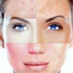 Исследование объясняет, почему некоторые кремы и косметика могут вызвать кожную сыпь