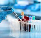 Микробная ДНК в крови пациента может быть признаком рака