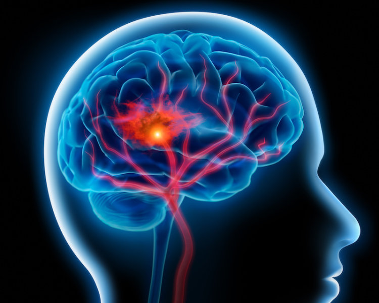 Восстановление поврежденного инсультом мозга крысы