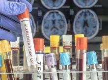 Новый анализ крови показывает большие перспективы в диагностике болезни Альцгеймера